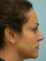 Rhinoplasty-Nose Job