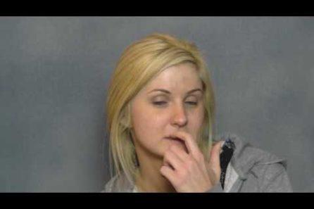 Tiffany's Acne Scarring Correction Testimonial in Dallas, Texas