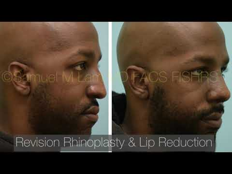 Dallas Revision Rhinoplasty and Lip Reduction Testimonial with Before and After