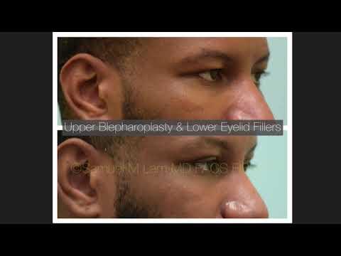 Dallas Upper Blepharoplasty and Lower Eyelid Testimonial (Audio) with Photos