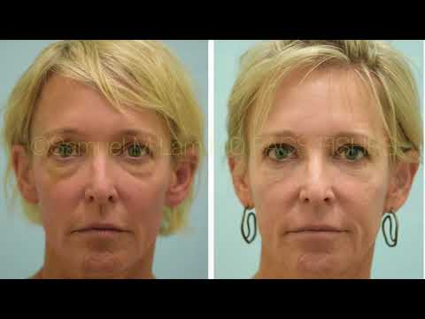 Dallas Upper and Lower Blepharoplasty, and Fat Transfer Testimonial with Photos