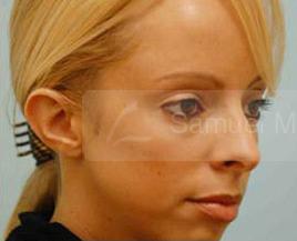 Otoplasty (Cosmetic Ear Reshaping)
