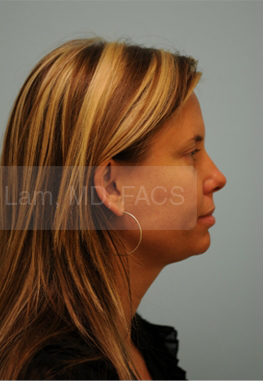 Otoplasty (Cosmetic Ear Reshaping)