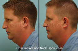 Chin Augmentation Before & After