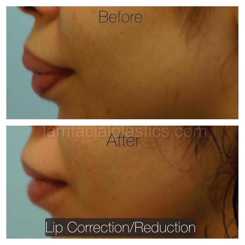 Lip Reduction Dallas Lip Procedures Plano Tx