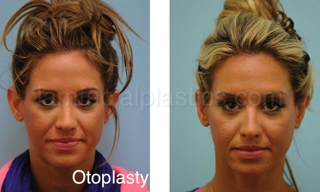 Top Five Otoplasty Meaning Medical - Circus