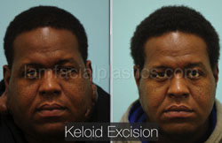 Keloid Removal Before & After