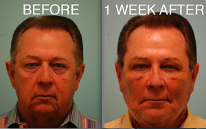 DALLAS FACE LIFT (FACELIFT), FAT GRAFTING, CHIN IMPLANT, BLEPHAROPLASTY